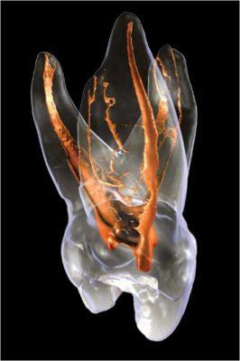 Dental anatomy in 3D