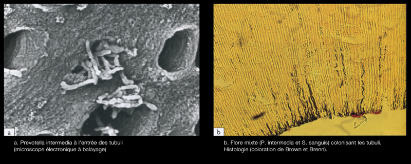 Bacteria in the first third of the peri-canal dentine