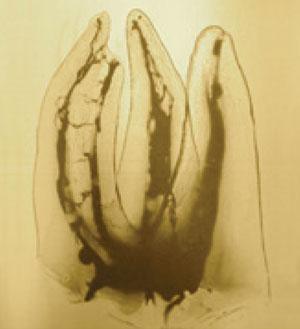 Maxillary transparent molar