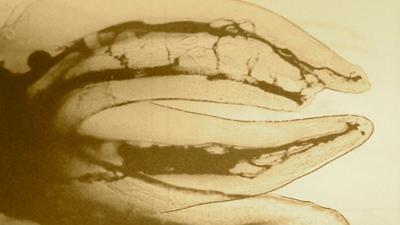 Molaire maxillaire rendue transparente par le Professeur Hess