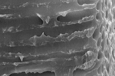 Élimination des bactéries intracanalaires