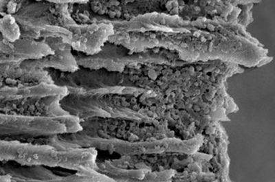 Contamination bactérienne intratubulaire